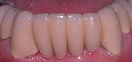 Closeup of smile with tooth colored restorations