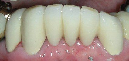 Flawlessly repaired teeth