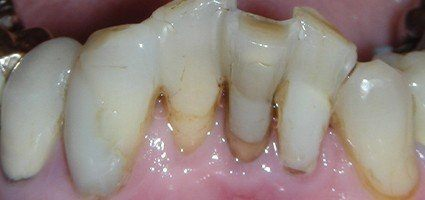 Severely decayed and damaged teeth