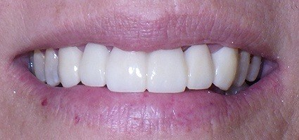 Perfectly restoreed smile after treatment