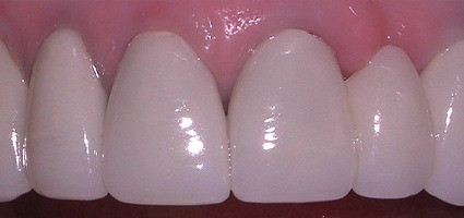 Crack in top tooth repaired