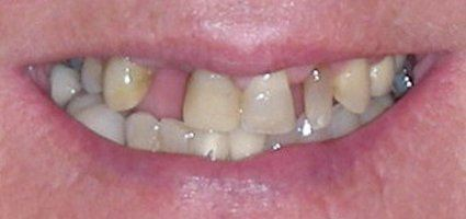 Several missing top teeth