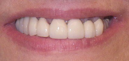 Completely restored smile after treatment