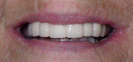 Repaired top teeth after treatment