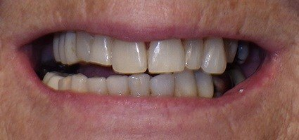 Damaged top teeth before treatment