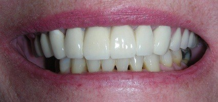 Gap closed between top teeth