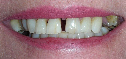 Gap between top teeth