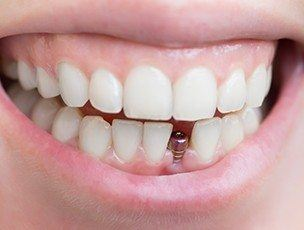 Smile with missing tooth and dental implant visible