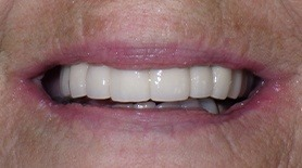 Flawless smile after dental restoration
