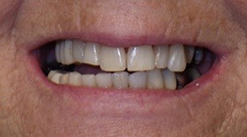 Damaged teeth before dental restoration